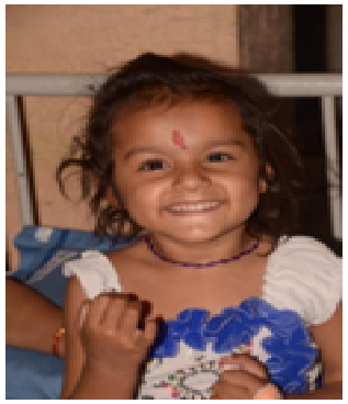 Aarti Kasi, 4 years old got operated successfully